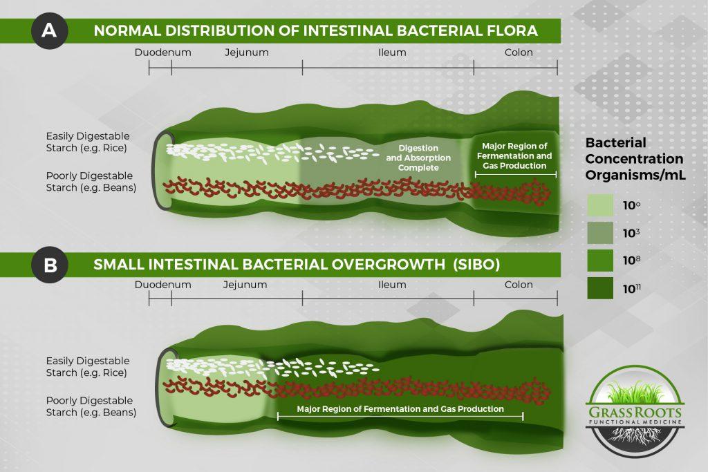 SIBO in the Small Intestine vs Not