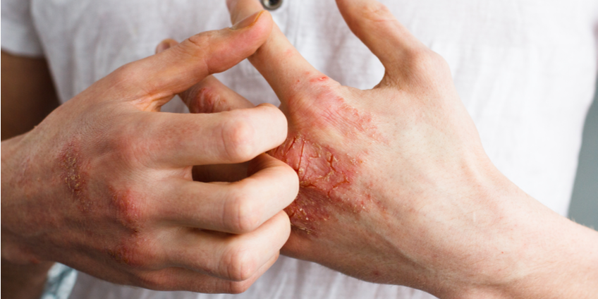 6 Root Causes of Eczema & How to Treat it Naturally