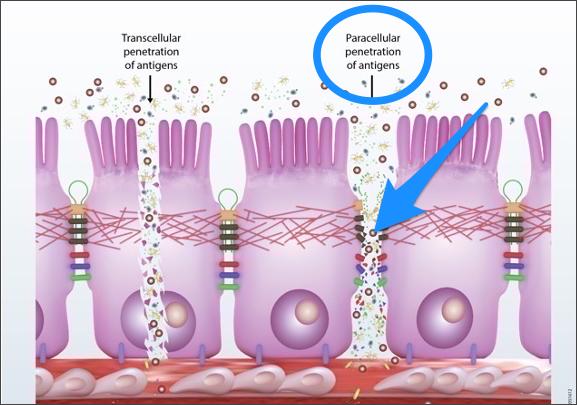 Paracellular Leaky Gut Damage