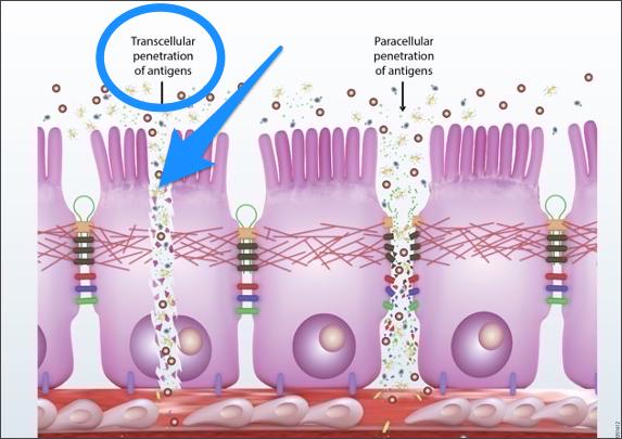 Transcellular Leaky Gut Damage