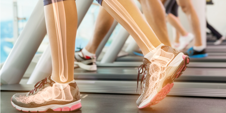 5 Bone-Health Mistakes You Might Be Making